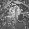 La caverne de peluches d'Ombre